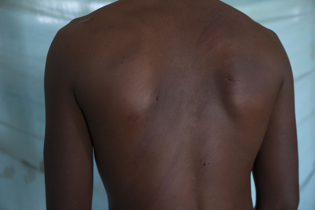 Adhanom Gebrehanis, a 20-year-old Tigrayan refugee from Korarit village, shows the welts on his back from a beating by Eritrean soldiers, after a chec...