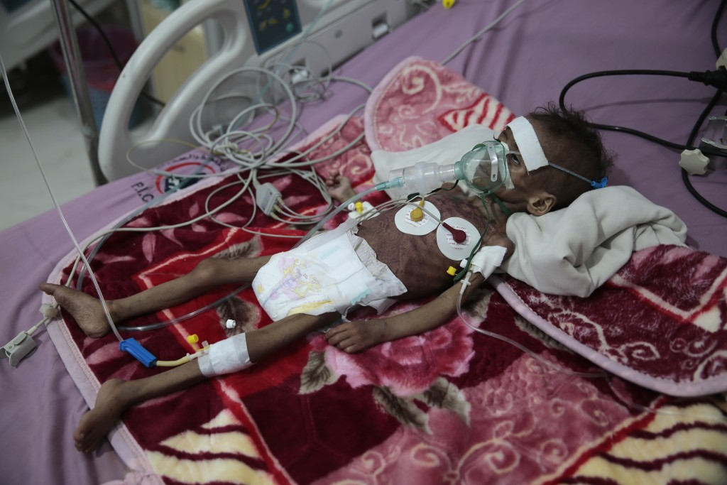 FILE - In this Nov. 3, 2020 file photo, a malnourished girl, Rahmah Watheeq, receives treatment at a feeding center at Al-Sabeen hospital in Sanaa, Ye...