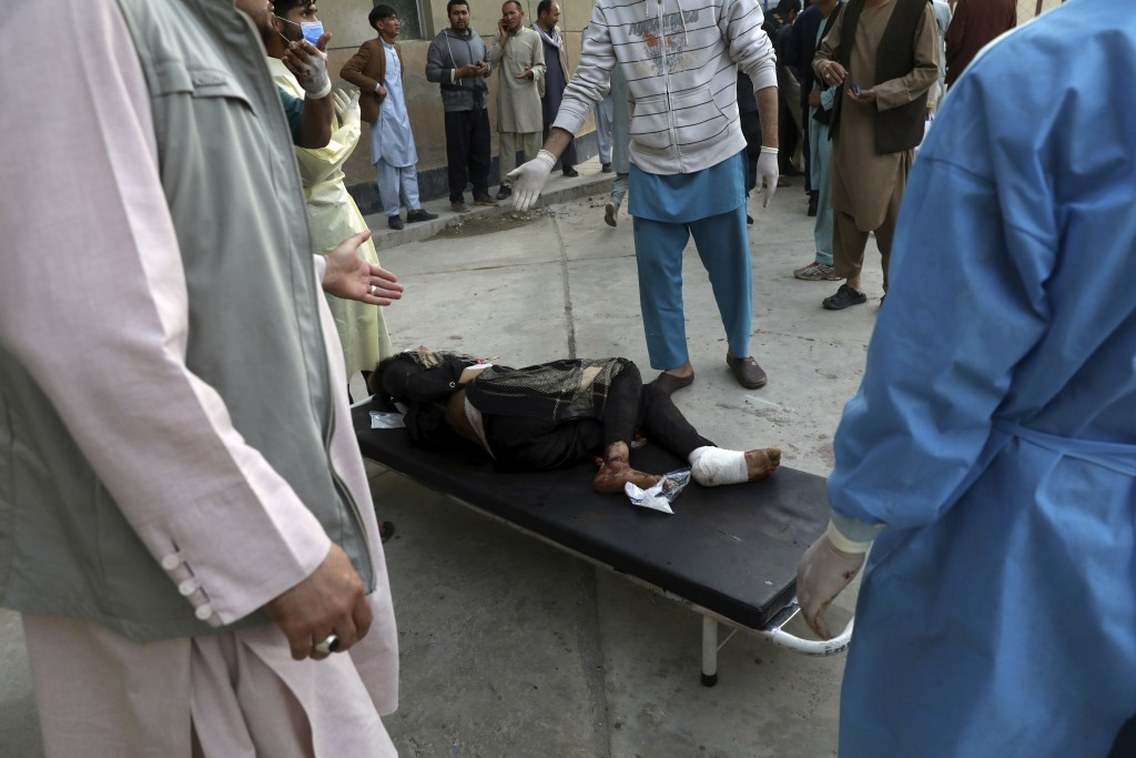 An injured school student is transported to a hospital after a bomb explosion near a school in west of Kabul, Afghanistan, Saturday, May 8, 2021. A bo...