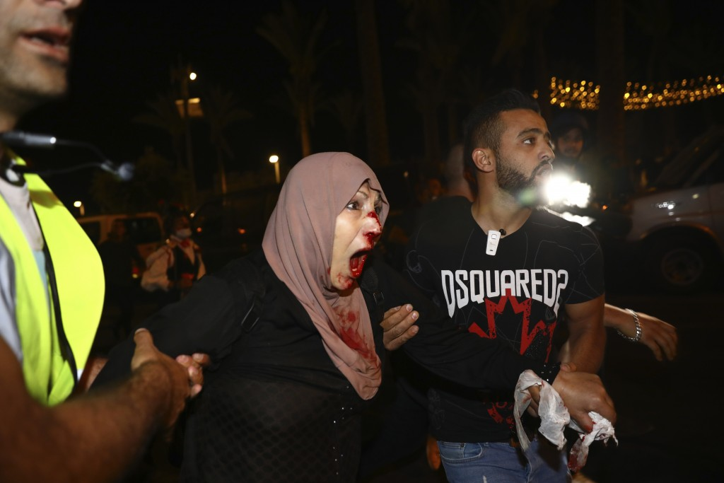 An injured Palestinian demonstrator is helped during a protest against the planned evictions of Palestinian families in the Sheikh Jarrah neighborhood...