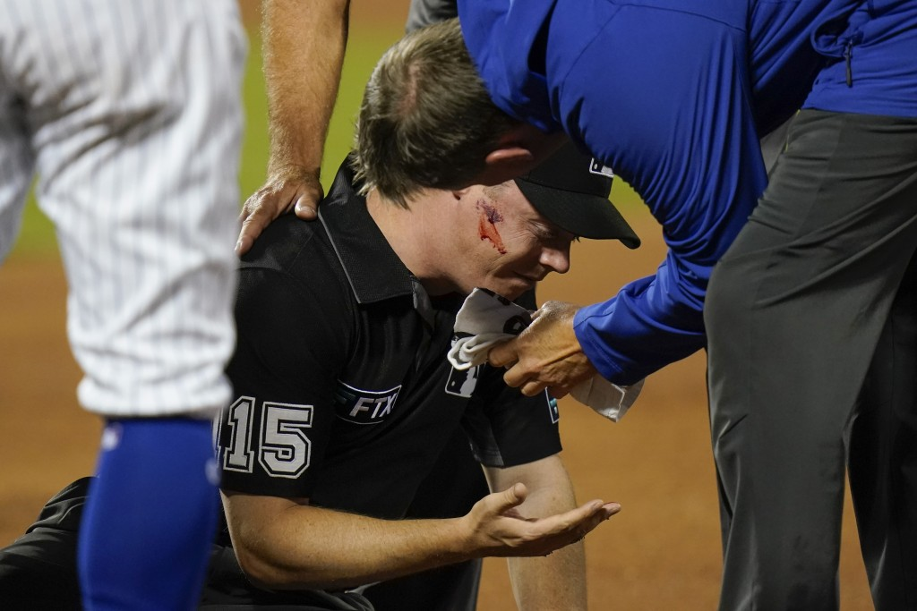 First base umpire Junior Valentine is checked by a trainer after he was hit by a thrown ball during the second inning of a baseball game between the N...