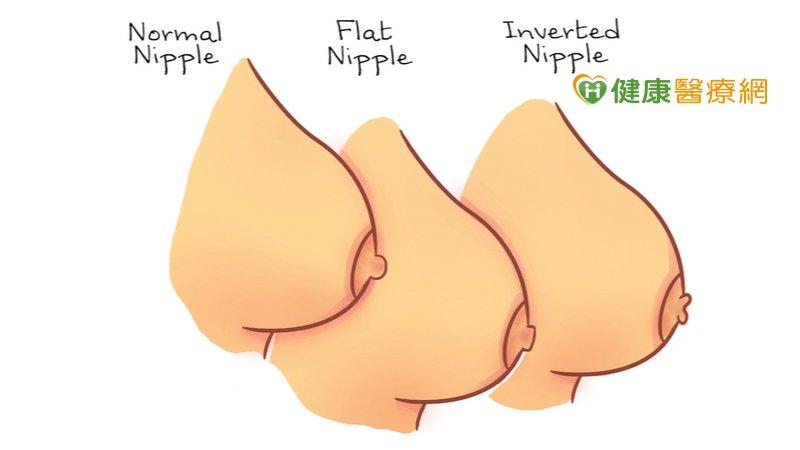乳頭凹陷別以為正常! 小心是「乳癌」作祟