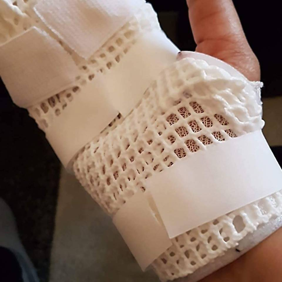 """Nidhi Kapoor's bandaged hand after her HTC phone """"exploded."""" (Photo by Nidhi Kapoor)"""