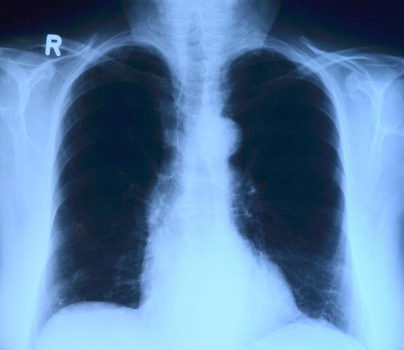 圖片僅為示意圖,非患者之X光片。