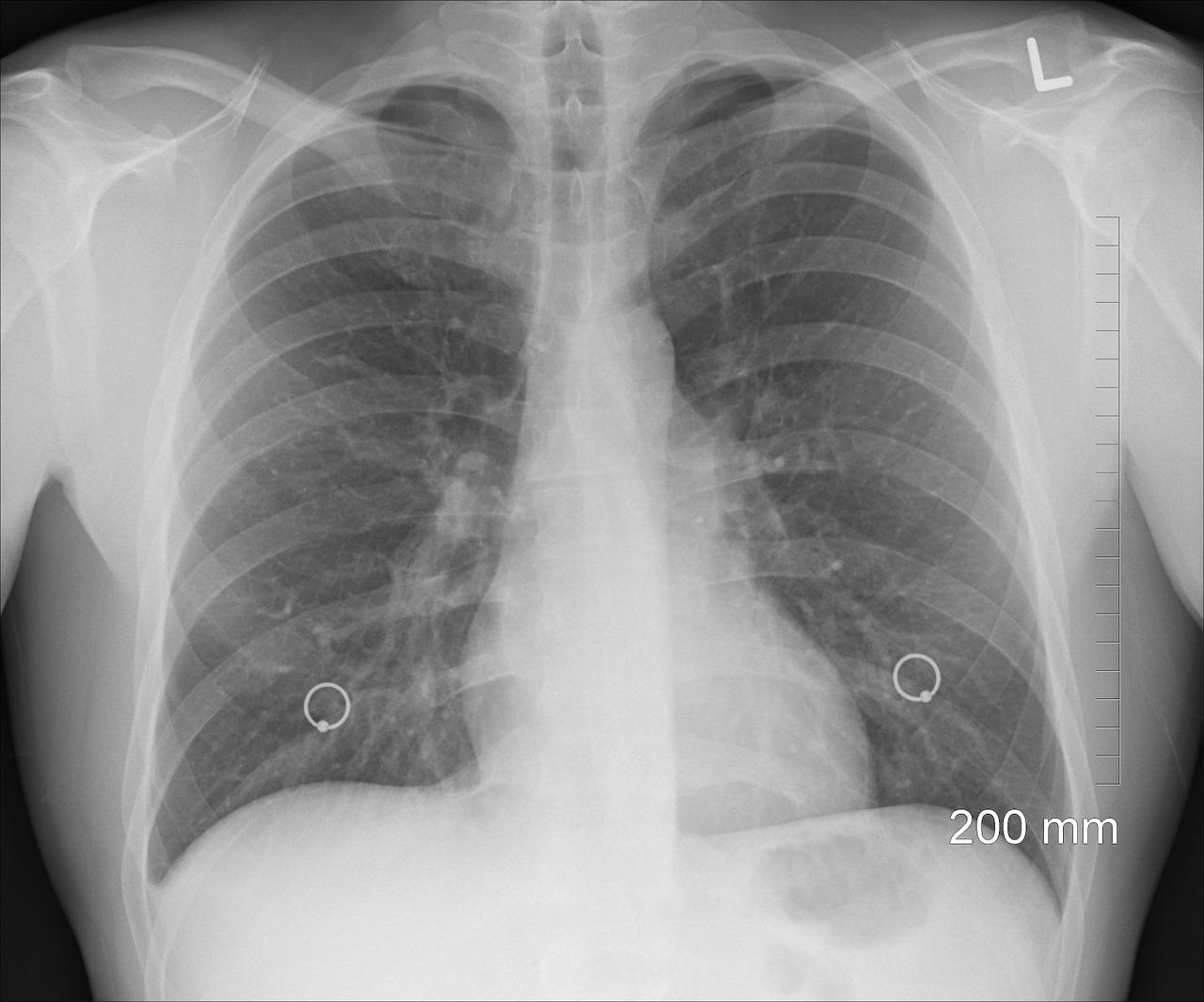 圖片僅為示意圖,非癌症患者肺部X光片。