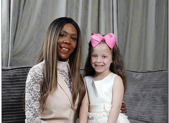 黑人母生下白皮膚女兒 醫生:機率百萬分之一