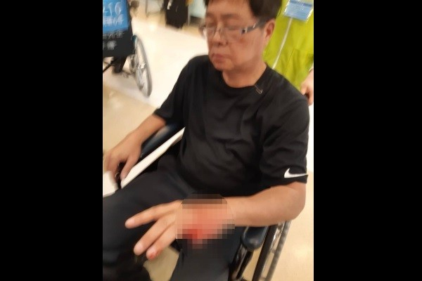 Colonel waits to be treated. (Photo from Alex Tsai Facebook page)