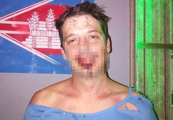 Paul after brutal attack.