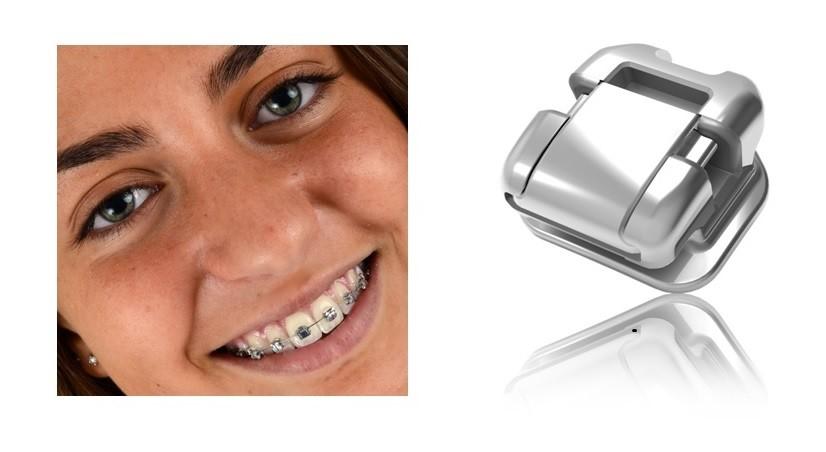 美萌公司生產之自鎖式齒顎矯正器  (美萌科技(股)公司提供)