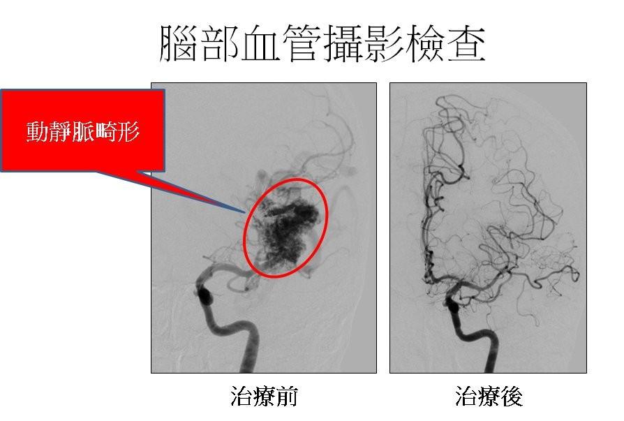 動靜脈畸形 (長庚醫院提供)