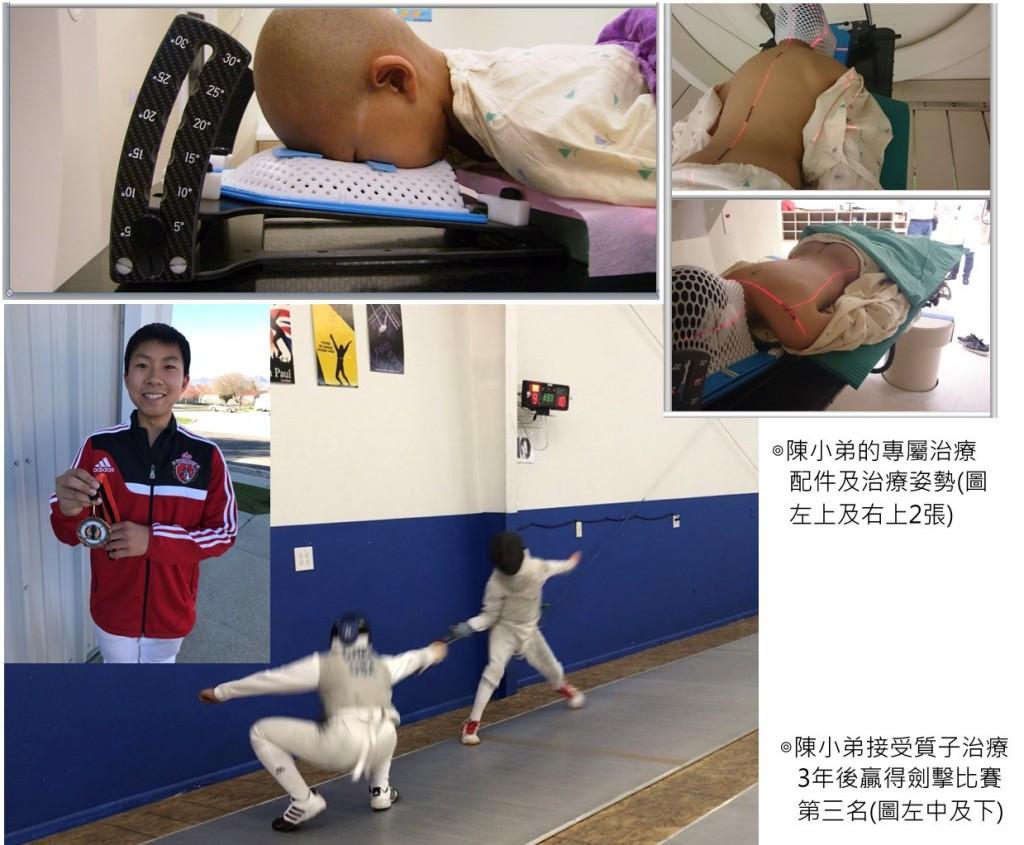 圖片來源:長庚醫院