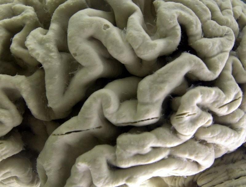 阿茲海默症患者的大腦(美聯社)