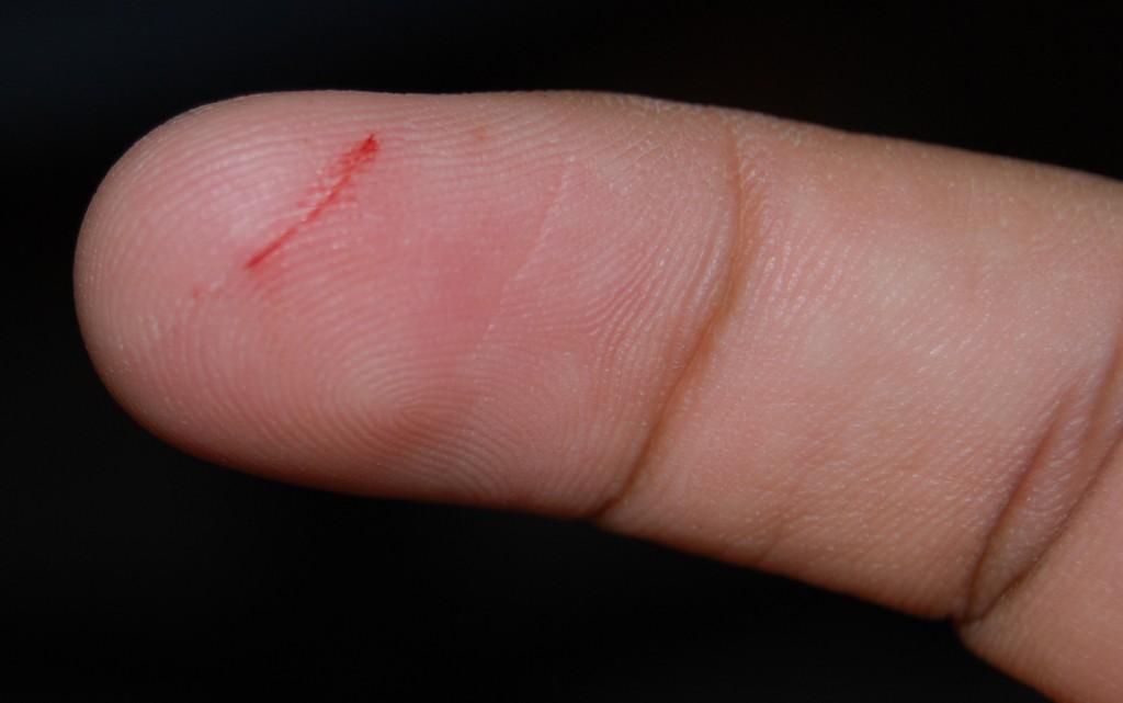 為什麼手指被紙張割到會這麼痛?(圖片來源:維基百科)