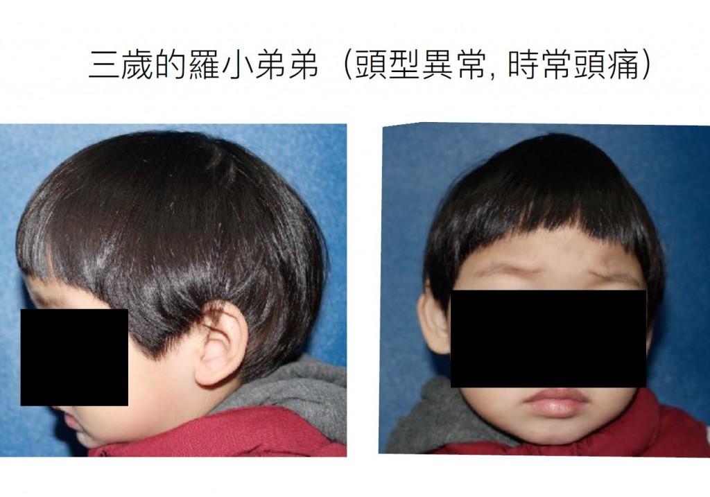 3歲的羅小弟頭形異常時常頭痛 (長庚醫院提供)