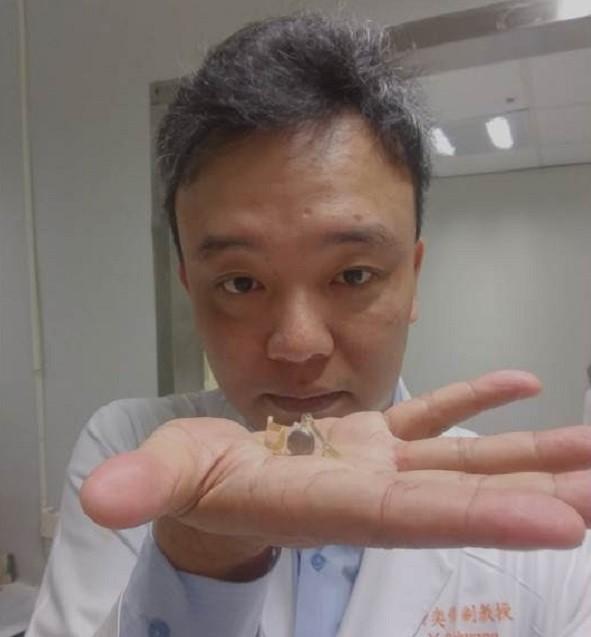 林口長庚紀念醫院眼科部視網膜科黃奕修主任展示人工電子眼。(林口長庚紀念醫院提供)