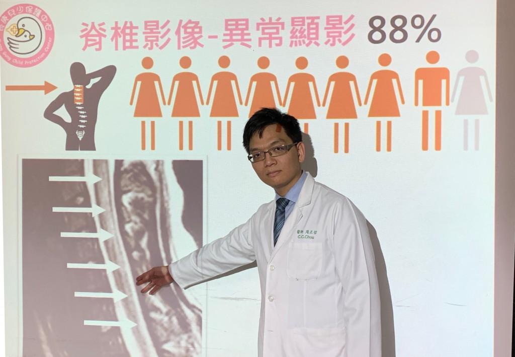 長庚周正哲醫師表示,已發現多位青少年濫用笑氣致脊髓神經退化受損。(圖片提供:林口長庚醫院)