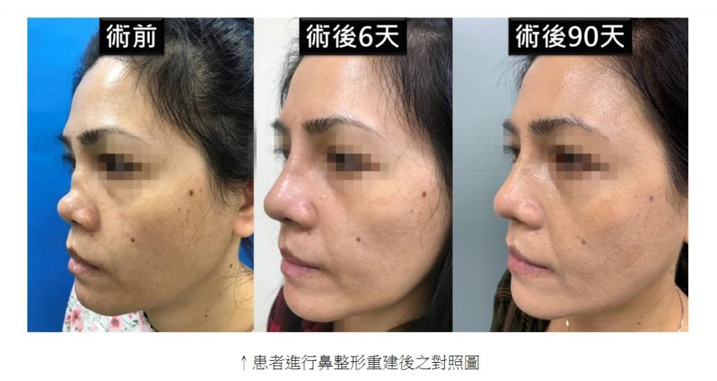 患者進行鼻整形重建後之對照圖。(圖/擷取自馬偕醫院官網)