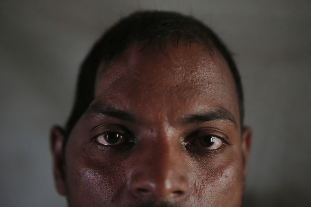 In this Nov. 24, 2016 photo, Salit Mandal, 28, sits on his bed at his home in Parikauli Village, Saptari district, a region where many ...