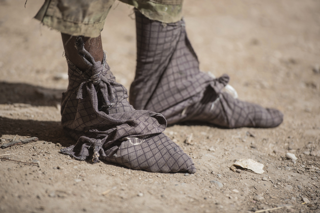 In this Tuesday, Aug. 2, 2016 photo, a frankinsence tapper wears cloth wrapped on his feet to keep sticky resin from his skin and shoes...