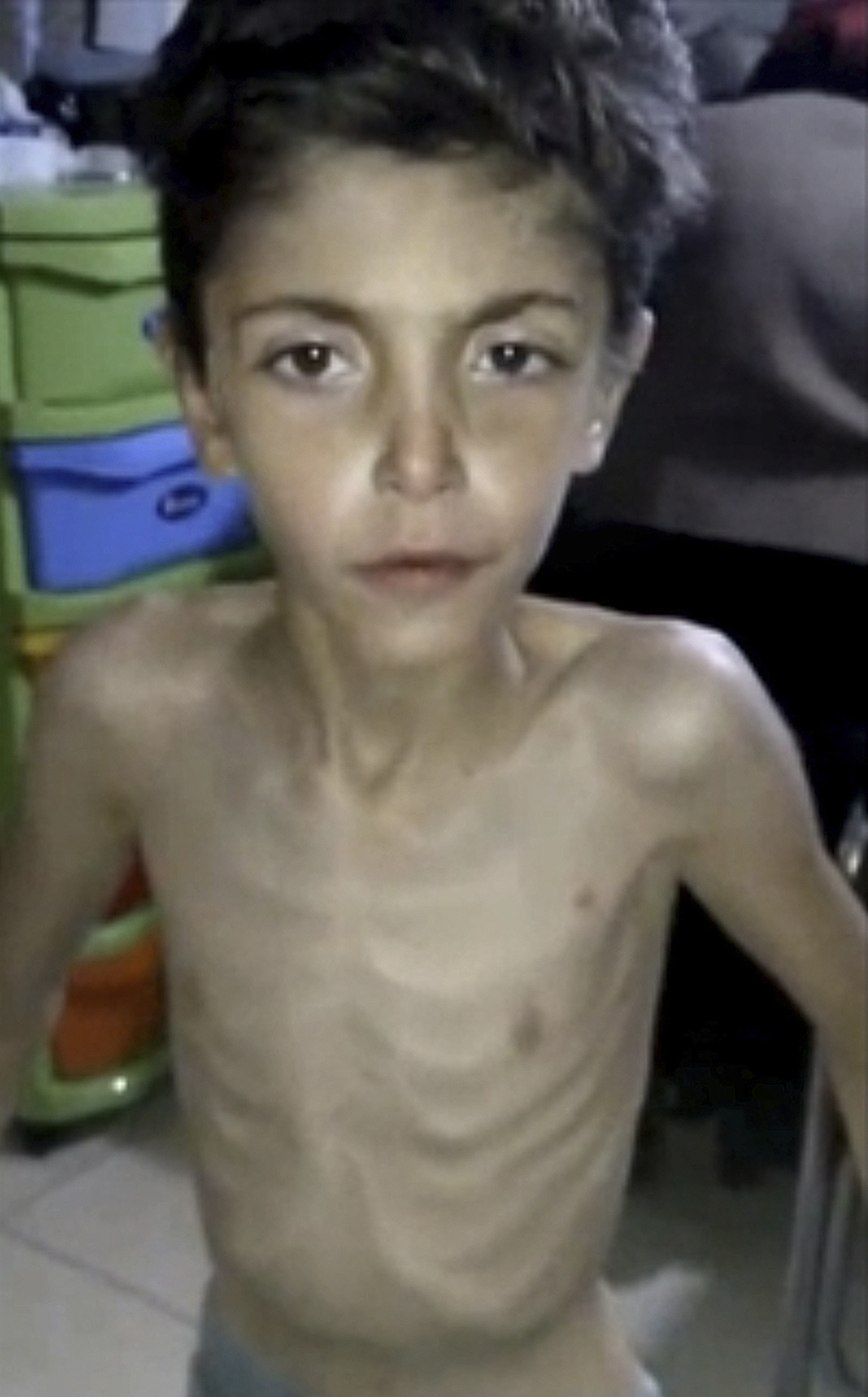 FILE - In this file image made from video posted online on Jan. 8, 2016, by Madaya Medical Corps, an emaciated Syrian boy receives trea...