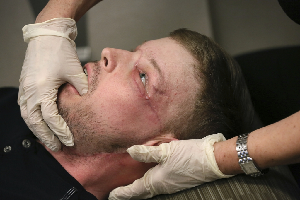 In this Jan. 24, 2017 photo, face transplant recipient Andy Sandness has his face checked during an appointment with physical therapist...