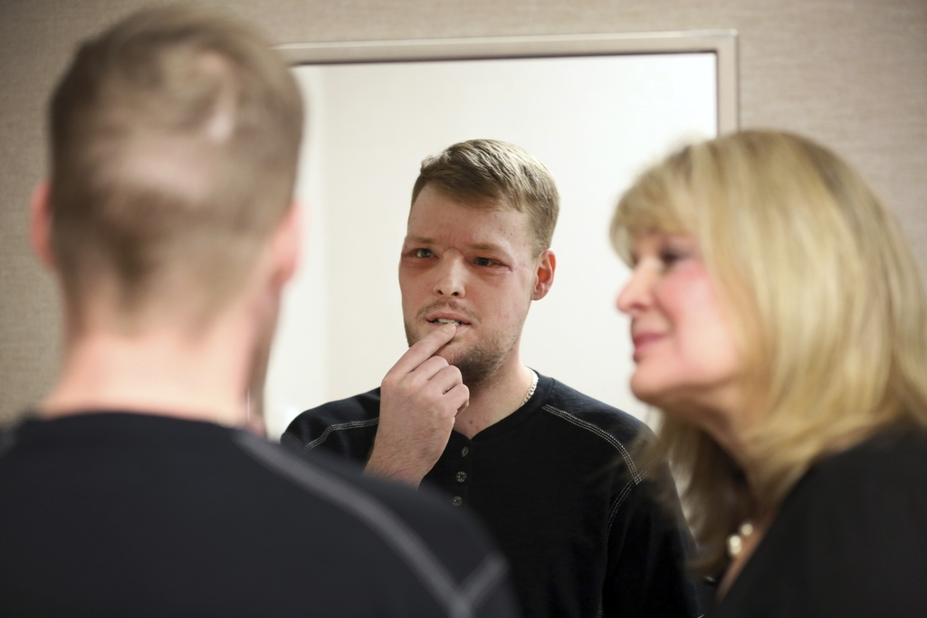 In this Jan. 24, 2017, photo, face transplant recipient Andy Sandness looks in a mirror during an appointment with physical therapist H...