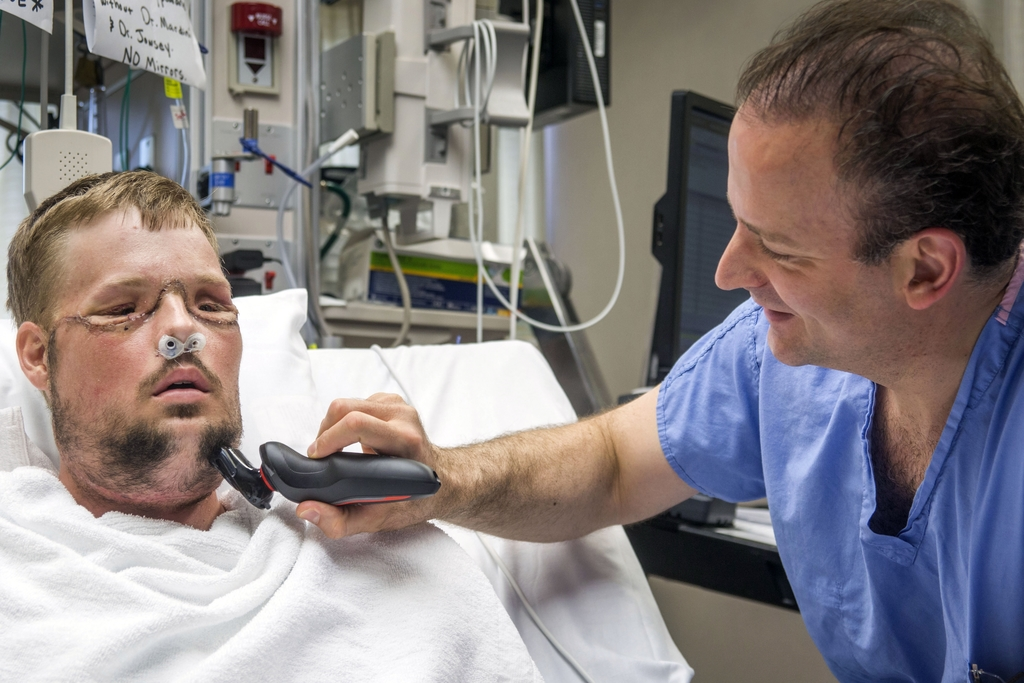 In this July 3, 2016 photo provided by the Mayo Clinic, Dr. Samir Mardini shaves the face of his patient, Andy Sandness, days after lea...