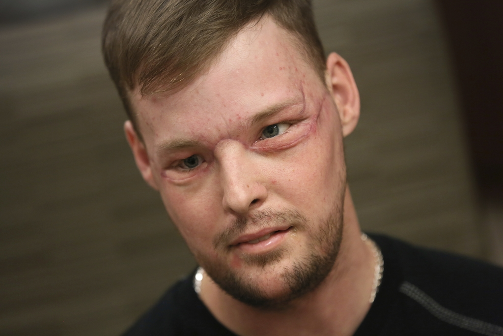 In this Jan. 24, 2017, photo, face transplant recipient Andy Sandness attends a speech therapy appointment at Mayo Clinic in Rochester,...