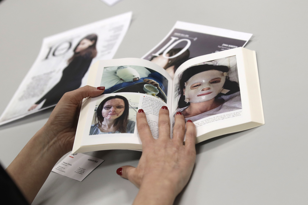 In this photo taken on Tuesday, Feb. 21, 2017, Lucia Annibali, victim of an acid attack, browses through the pages of her book showing ...