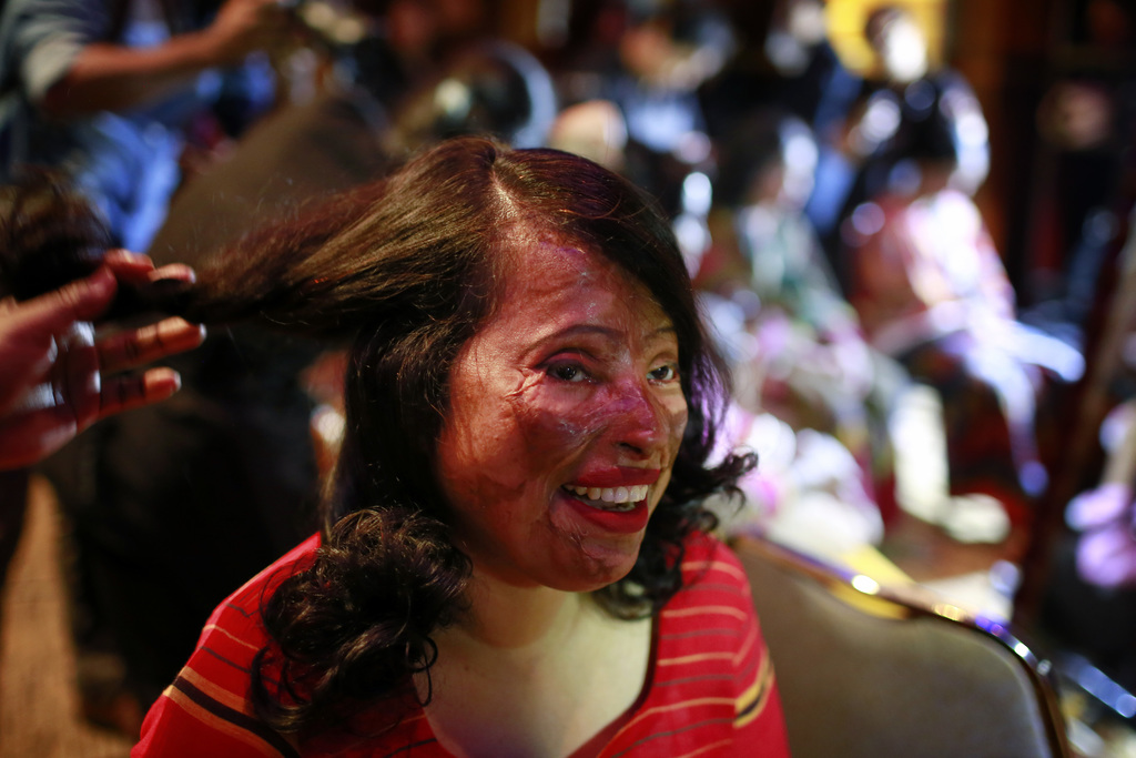In this March 7, 2017 photo, a Bangladeshi acid attack survivor gets her make up applied during the event 'Beauty Redefined' in Dhaka, ...