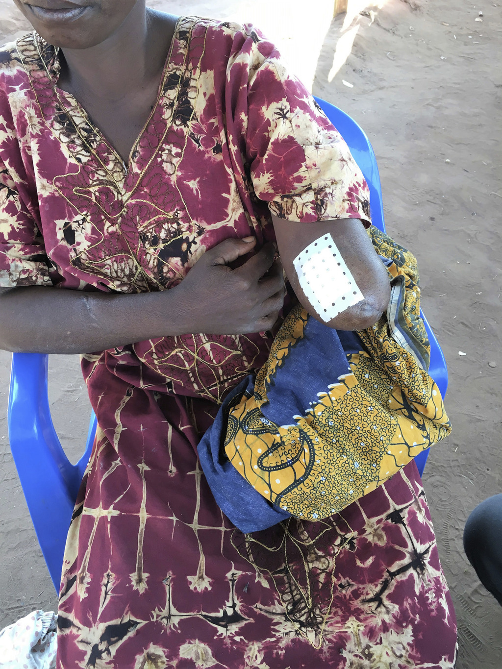 Undated photo provided by OHCHR in Geneva, shows a woman with amputated arm  in the province Lunda Norte, Angola in June 2017. U.N. human rights inves...