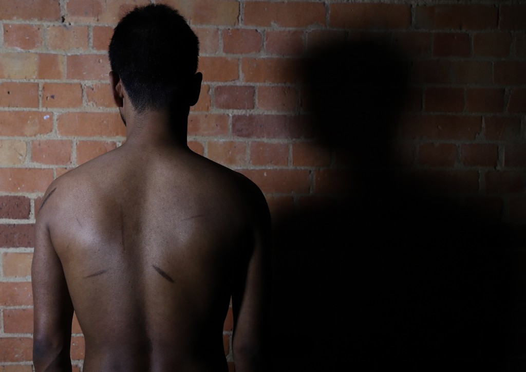 In this July 20, 2017, photo, a Sri Lankan man known as Witness #205 shows the scars on his back during an interview in London. He says that he was he...