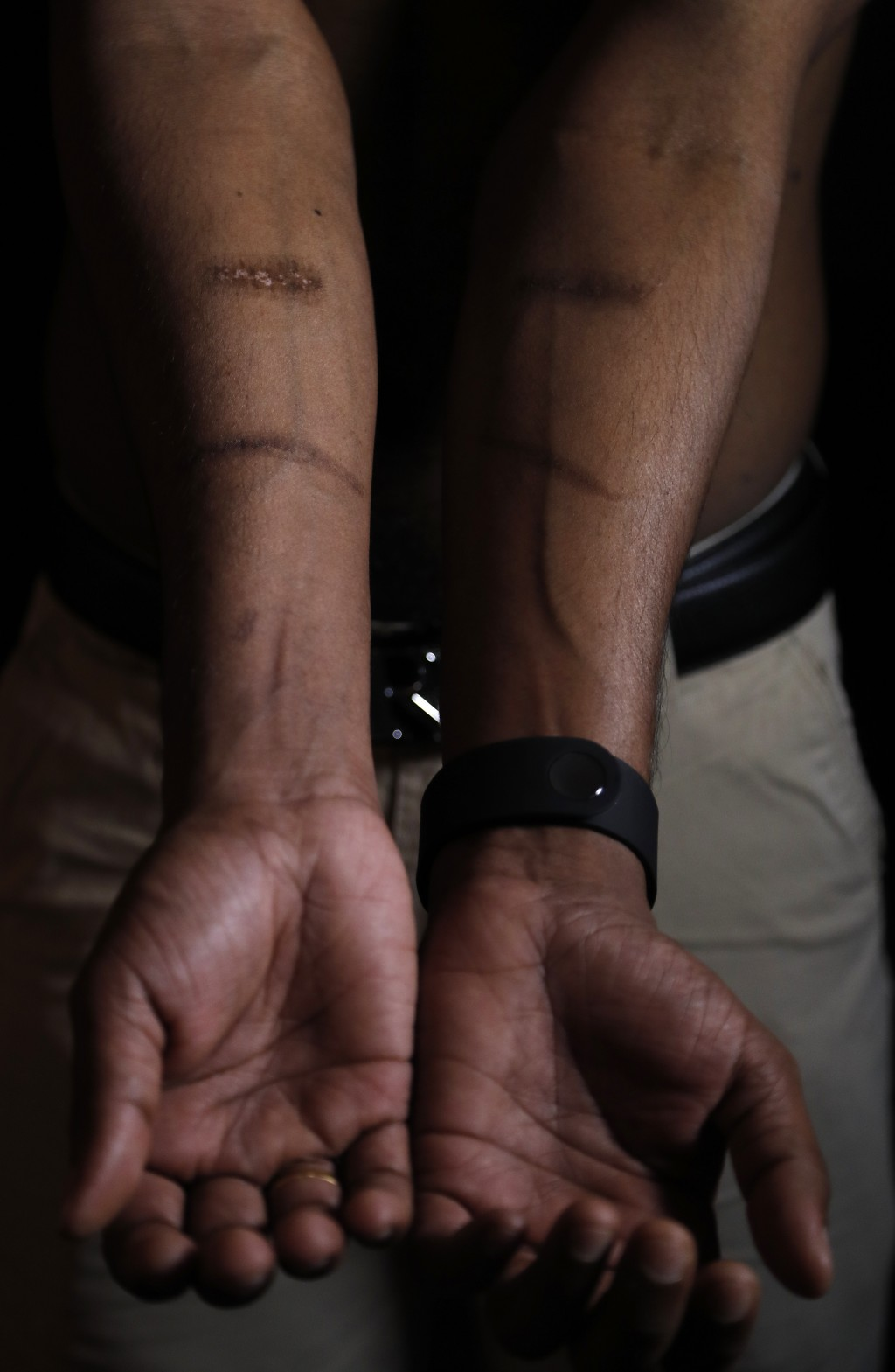 In this July 20, 2017, photo, a Sri Lankan man known as Witness #205 shows scars on his arms during an interview in London. The 22-year old, like the ...
