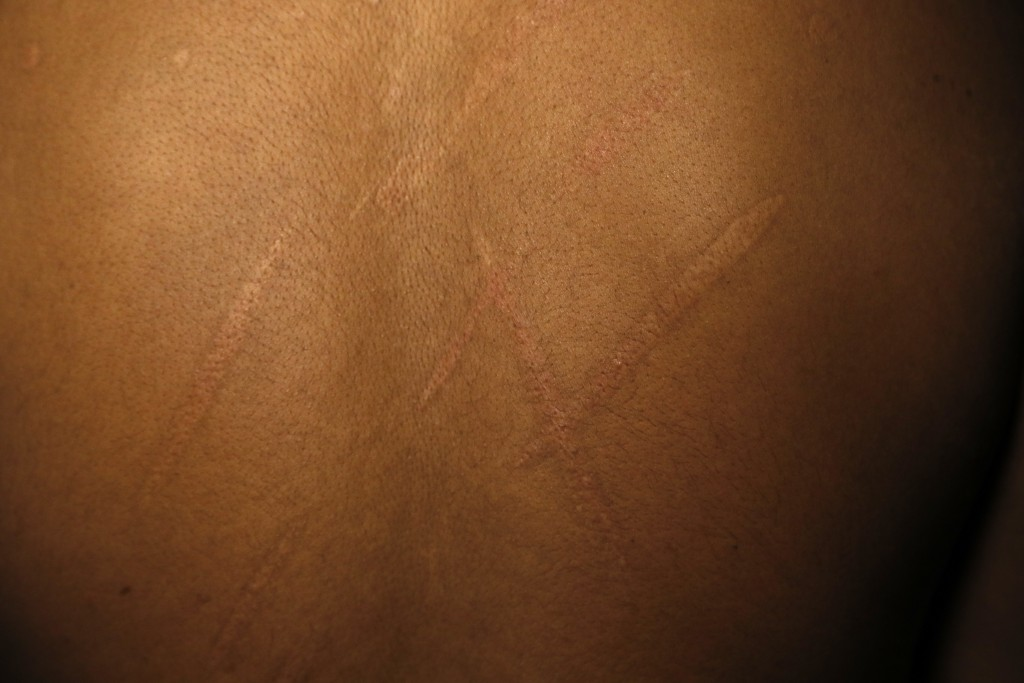 In this July 20, 2017, photo, a Sri Lankan man known as Witness #197 shows the scars on his back during an interview in London. During his detention, ...