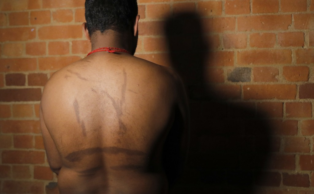 In this July 18, 2017, photo, a Sri Lankan man known as Witness #249 shows brand marks on his back during an interview in London. He said his captors ...