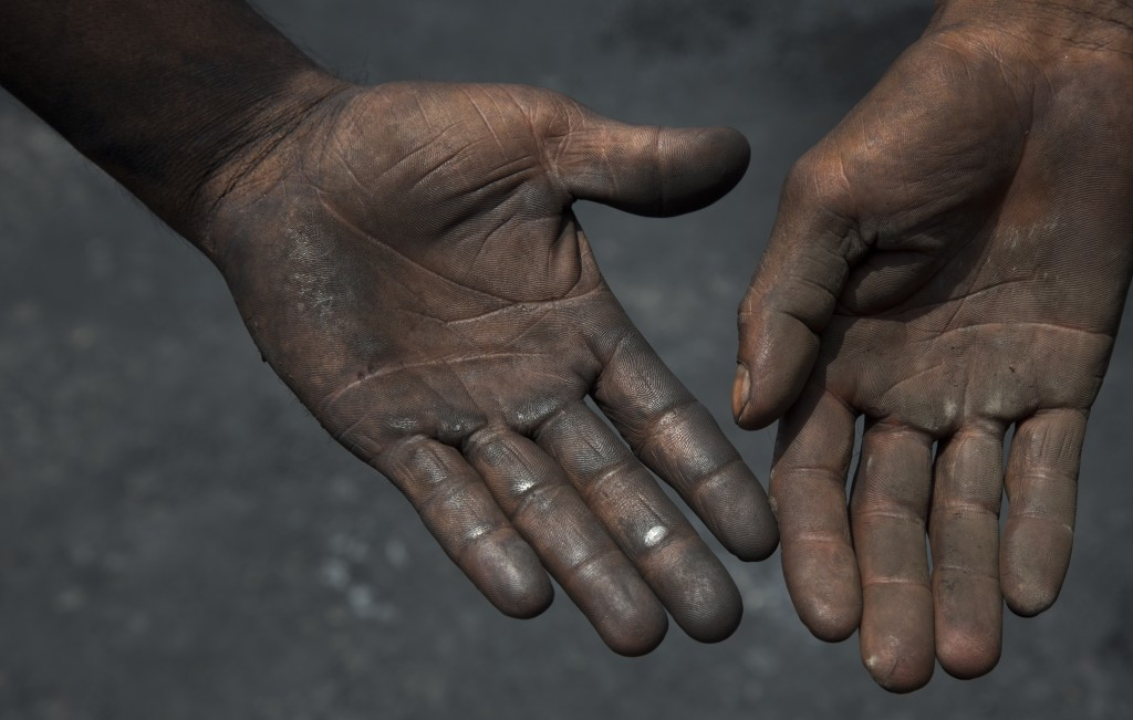 In this July 14, 2017 photo, contractual laborers who sweep and collect petroleum coke for transport to factories display their hands in Rampur, about...