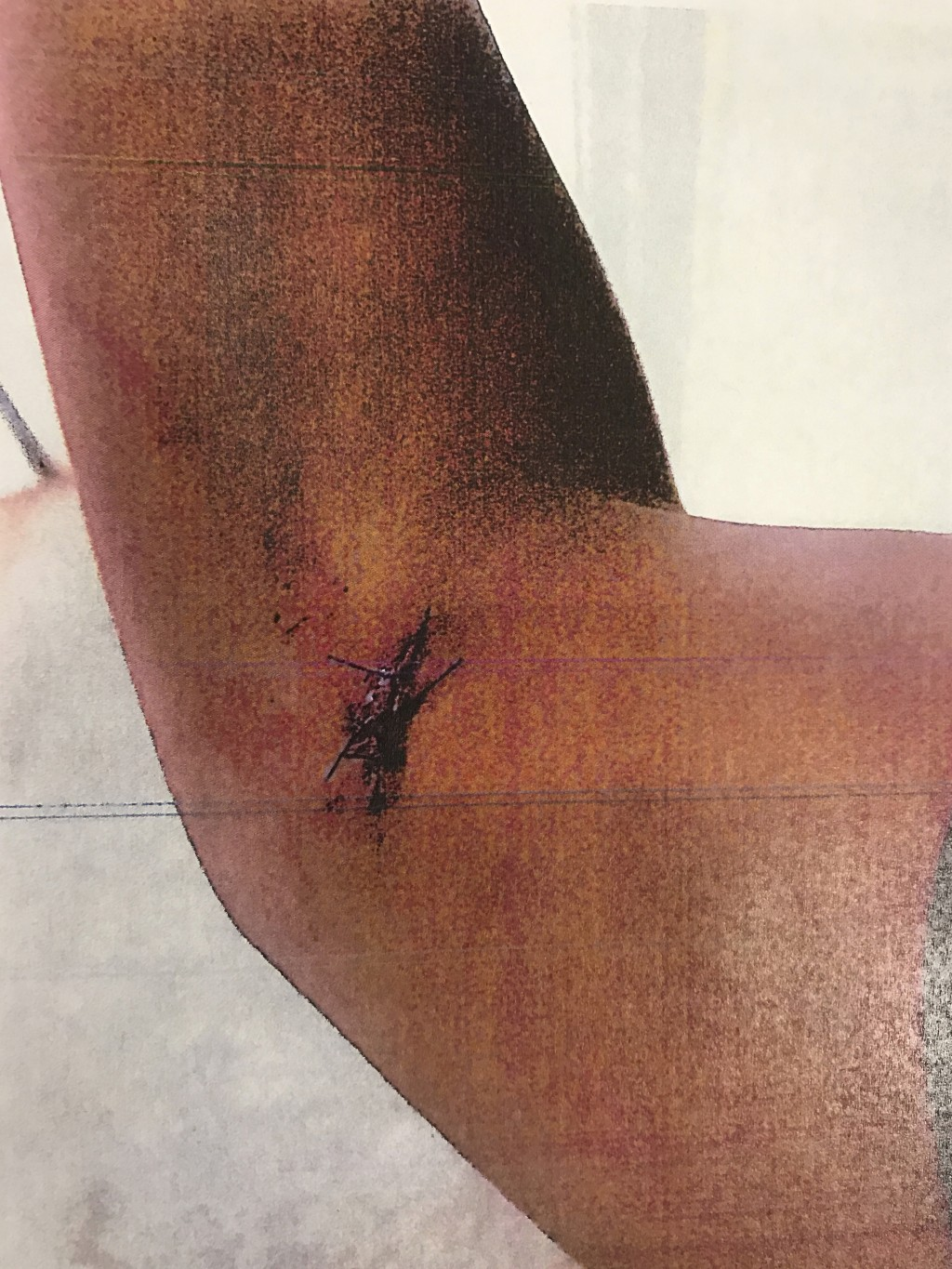 This photo provided by the Los Angeles County Superior Court shows what appears to be a wound closed by stitches on the arm of John Conyers III's form