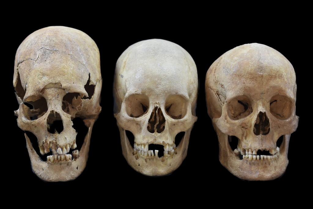 Undated photo provided by the State collection for Anthropology and Palaeoanatomy Munich shows strong, intermediate and non-deformed skulls, from left