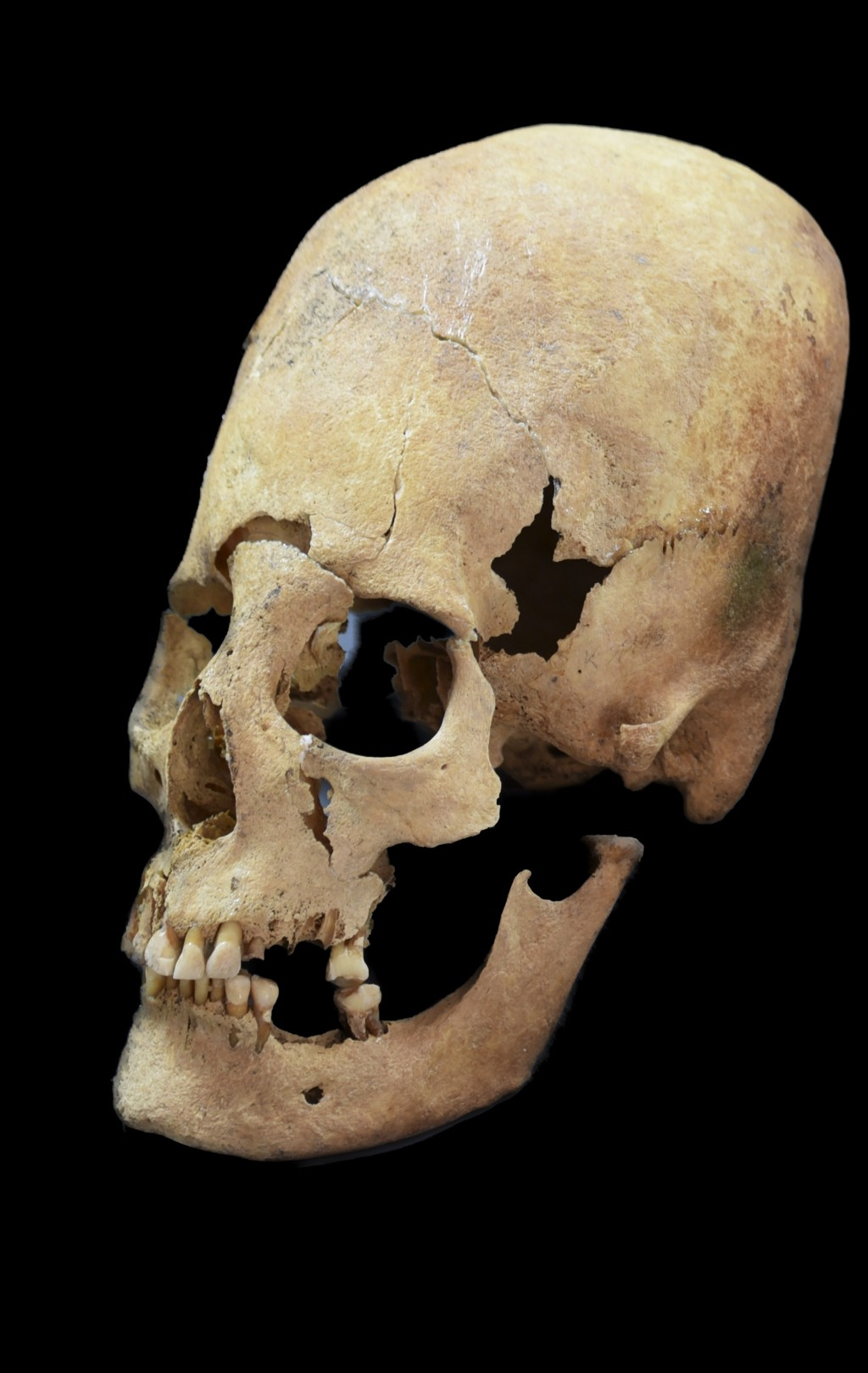 Photo provided by the State collection for Anthropology and Palaeoanatomy Munich shows an artificially deformed female skull from Altenerding, an Eary