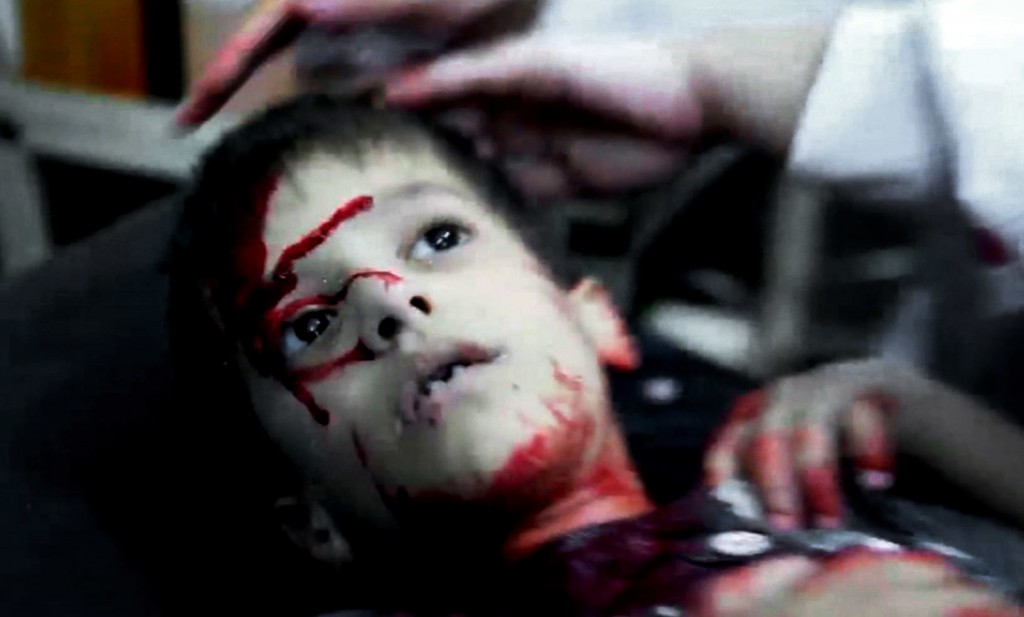 FILE - This file image from video made available Sept. 3, 2012, shows Syrian medics helping a wounded child at the Dar al-Shifa hospital, in Aleppo, S