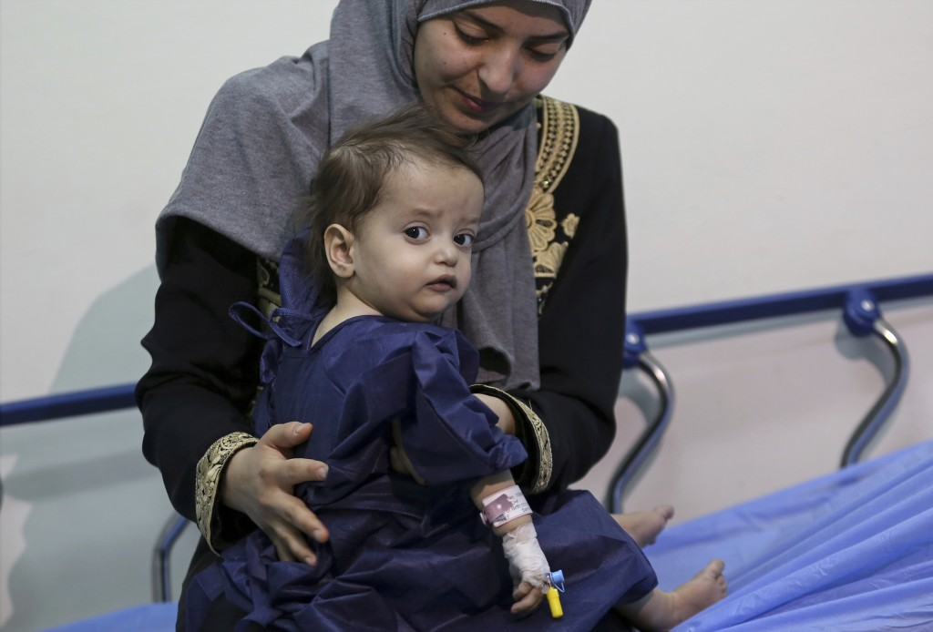 In this Monday, March 5, 2018 photo, Syrian refugee Sara al-Matoura holds her one-year-old daughter, Eman, as she is prepared for surgery at a hospita
