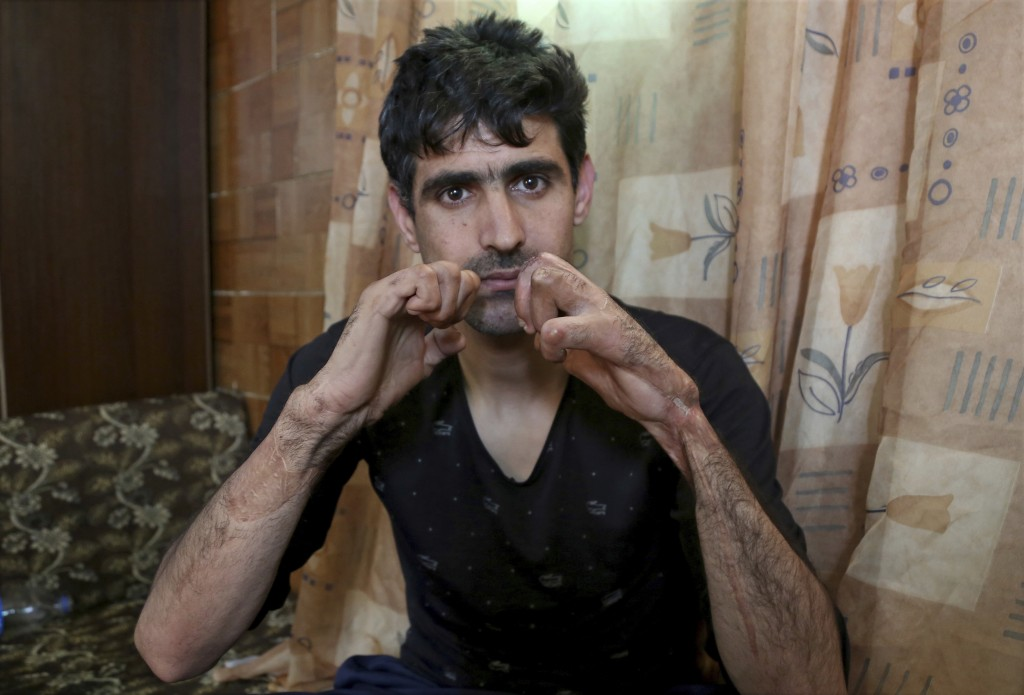 In this March 6, 2018 photo, Syrian refugee Hassan al-Turkmani, is photographed at his home in Amman, Jordan. Al-Turkmani needs surgery for his two ha