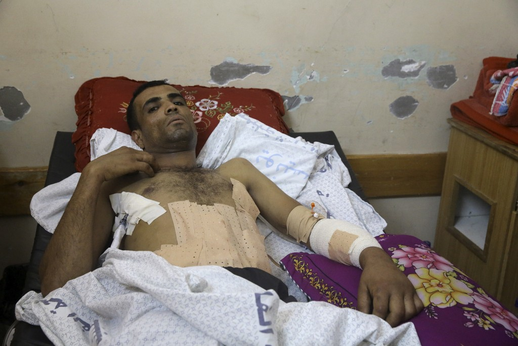 Marwan Shtewi, 32, lies on the bed at the surgery's ward of Shifa hospital in Gaza City, Wednesday, May 16, 2018. Shtewi was shot in his hand and abdo