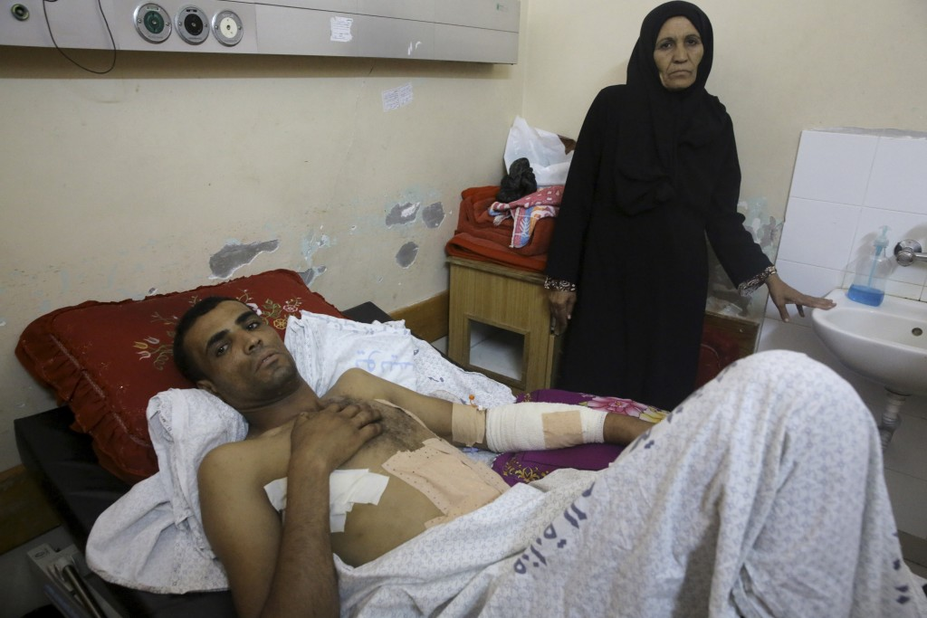 Marwan Shtewi, 32, lies on the bed while his mother's Fatma, stands near him at the surgery's ward of Shifa hospital in Gaza City, Wednesday, May 16,