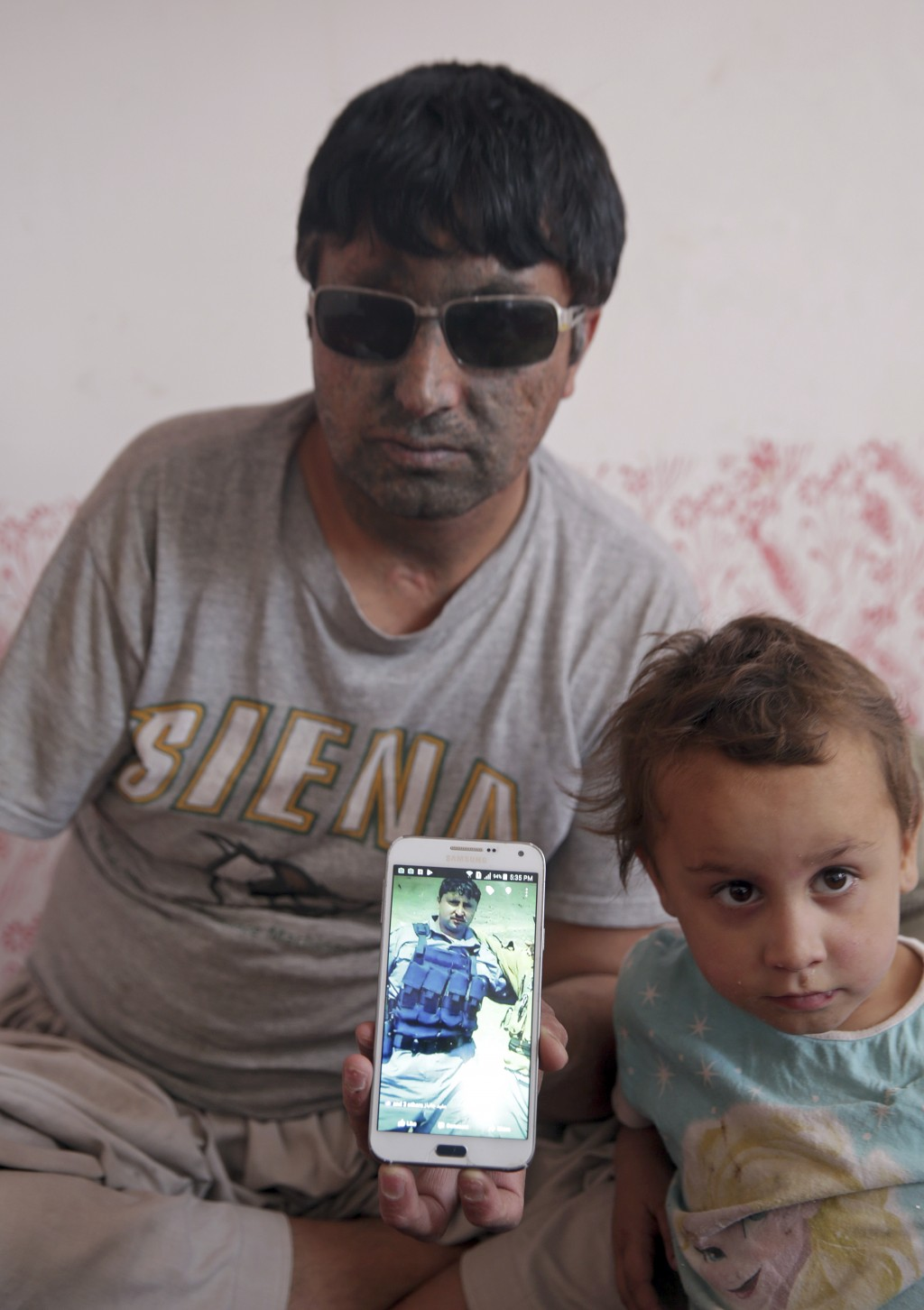 In this Saturday, June 7, 2018 photo, Abdul Agha, 33, a former policeman who lost his right arm and both eyes when his convoy hit a roadside bomb thre...
