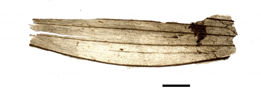This undated microscope photo provided by the South Tyrol Museum of Archaeology in July 2018 shows part of a wheat grain spikelet found in the stomach