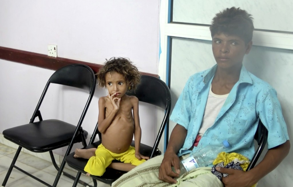 In this Aug. 25, 2018 image made from video, a severely malnourished girl waits for her turn to be treated at the Aslam Health Center in Hajjah, Yemen