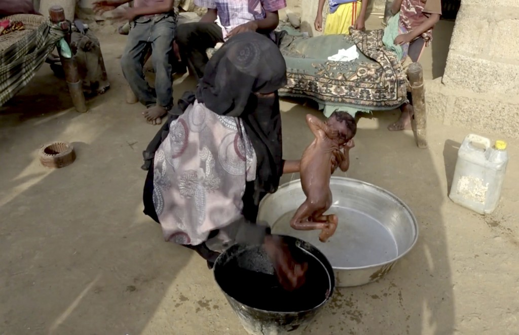 In this Aug. 25, 2018 image made from video, severely malnourished infant Zahra is bathed by her mother, in Aslam, Hajjah, Yemen. Yemen's civil war ha...