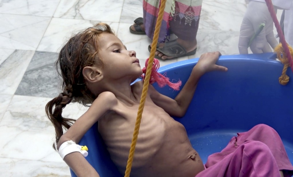 In this Aug. 25, 2018 image made from video, a severely malnourished girl is weighed at the Aslam Health Center in Hajjah, Yemen. Around 2.9 million w...