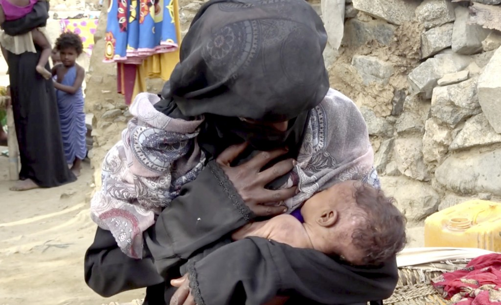 In this Aug. 25, 2018 image made from video, severely malnourished infant Zahra breastfeeds from her mother, in Aslam, Hajjah, Yemen. Yemen's civil wa...